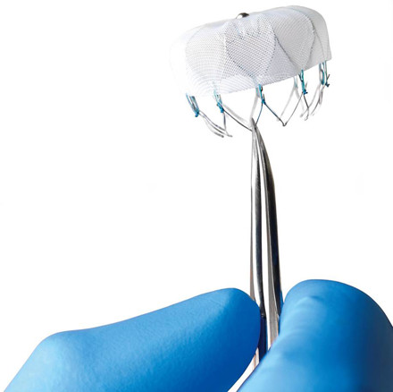 Tristar Centennial Medical Center Among First Hospitals in the Nation to Offer an Alternative to Long-term Warfarin Medication with the Newly Approved Watchman™ Laac Implant